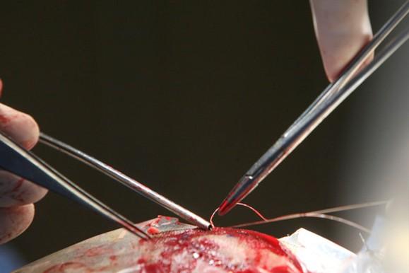 Cirurgião amador retira testículo de paciente de 52 anos