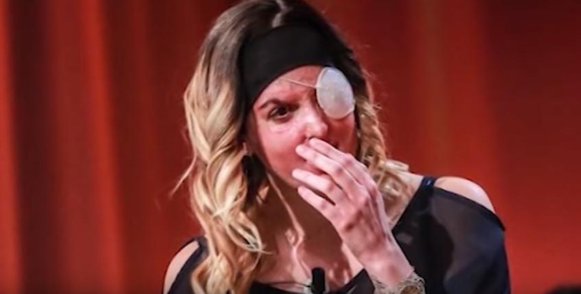 Resultado de imagem para Finalista do Miss Itália mostra cara depois de ter sido atacada com ácido