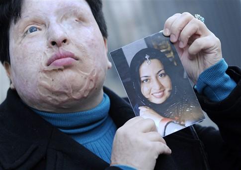 Iraniana perdoa homem que a cegou com ácido