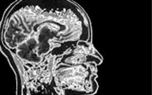 O mito do QI