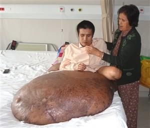 Vietnamita operado para retirar um tumor de 90 quilos