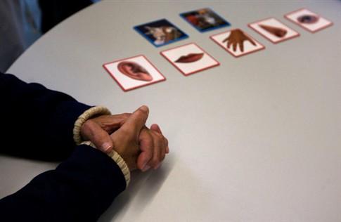 Nova possibilidade para tratar Alzheimer antes dos sintomas