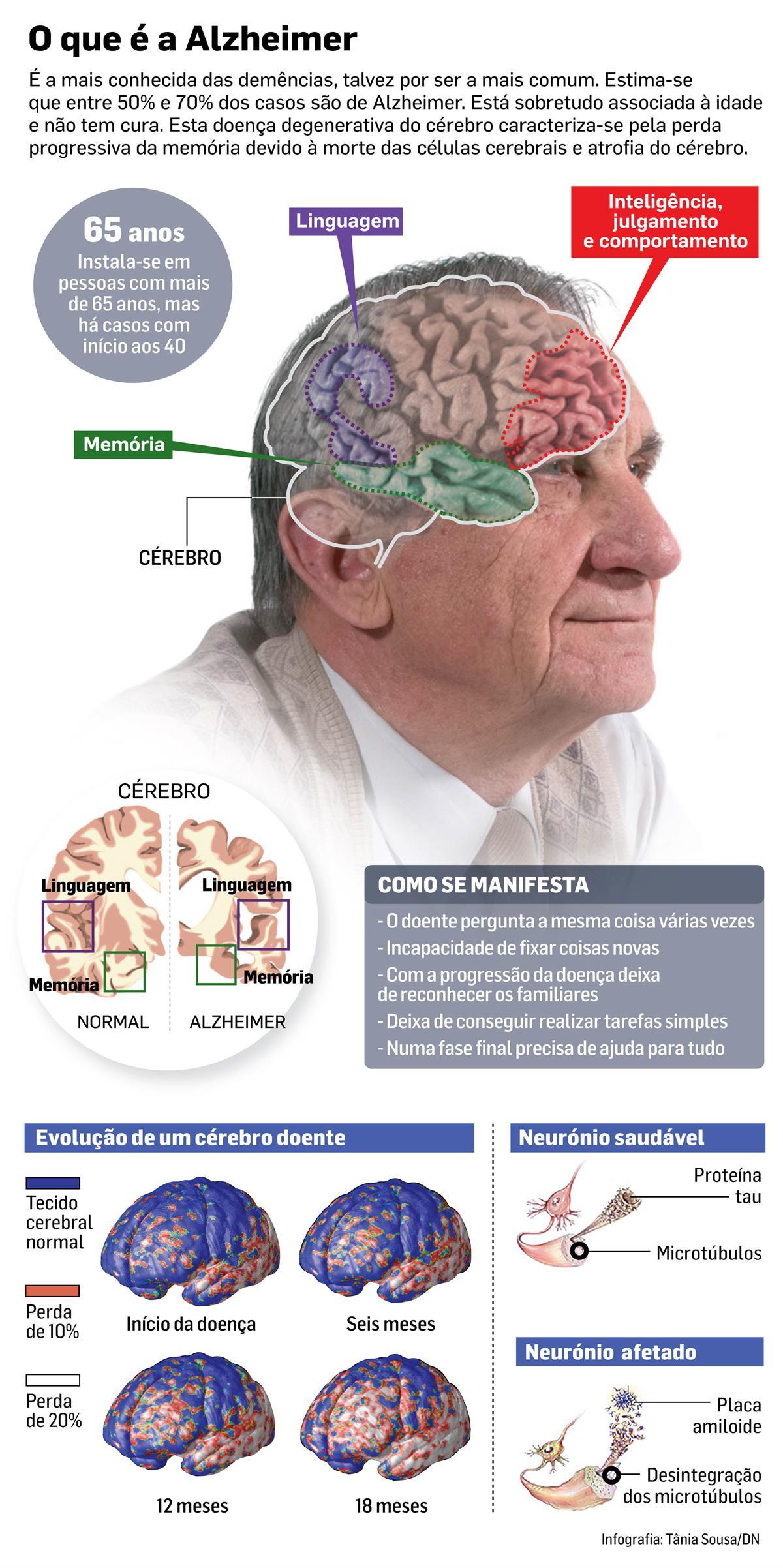 Alzheimer: cientistas descobrem nova estratégia de combate à doença