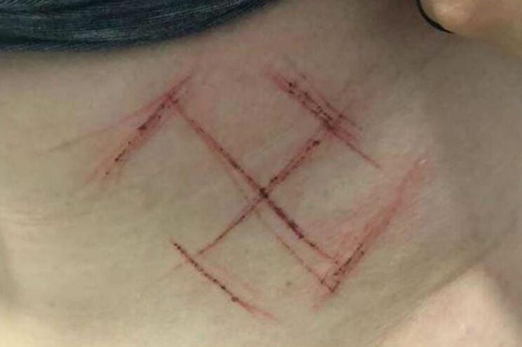 Jovem é atacada e marcada com suástica na barriga por ser contra Bolsonaro
