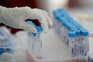 Dois mortos e 120 novos casos de covid-19 em Portugal
