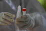 Ensaio clínico de tratamento com anticorpos cancelado nos EUA por ineficácia
