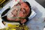 Motorista da Vimeca ficou com o maxilar partido