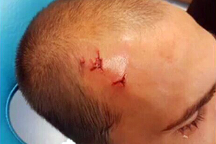 Bas Dost foi agredido na cabeça