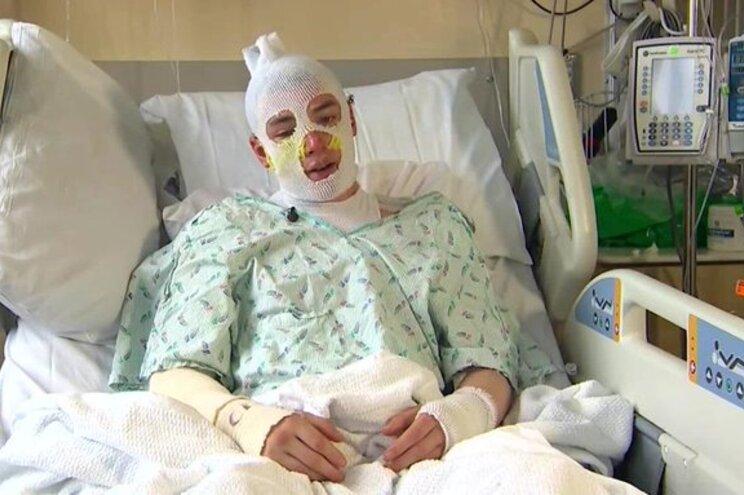 Tio herói sofreu queimaduras em todo o corpo para salvar sobrinha de 8 anos