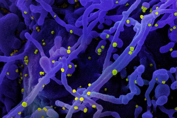 Imagem colorizada mostra uma célula (a roxo) infetada com SARS-COV-2 (a amarelo)