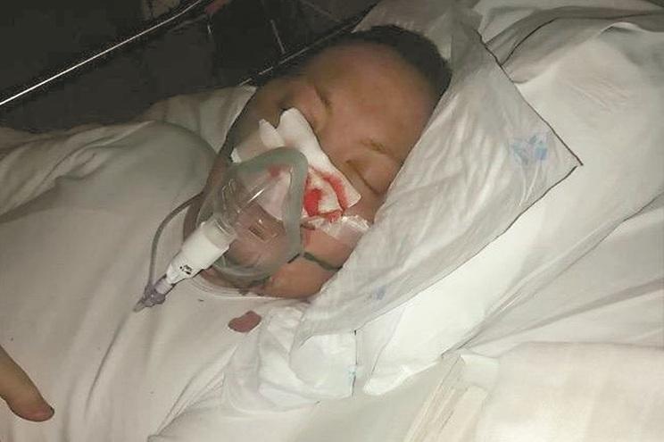 Arguido com leucemia esteve preso 15 minutos e aguarda pena alternativa