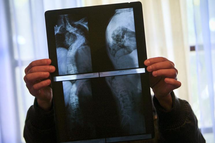 Radiografias podem ser fonte de receitas para a AMI