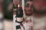 Exibe-se a beber champanhe em hotel após abandonar namorada baleada pela PSP