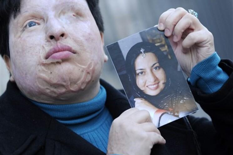 Ameneh Bahrami, antes e depois do ataque com ácido