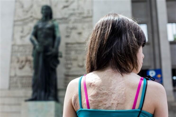 Em agosto faz sete anos que óleo a ferver transformou a vida e o corpo de Iara