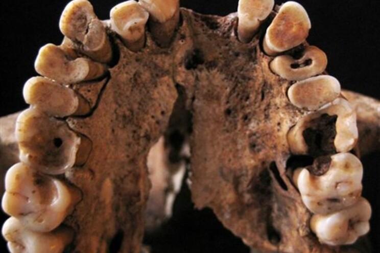 Homens já tinham cáries há 15 mil anos