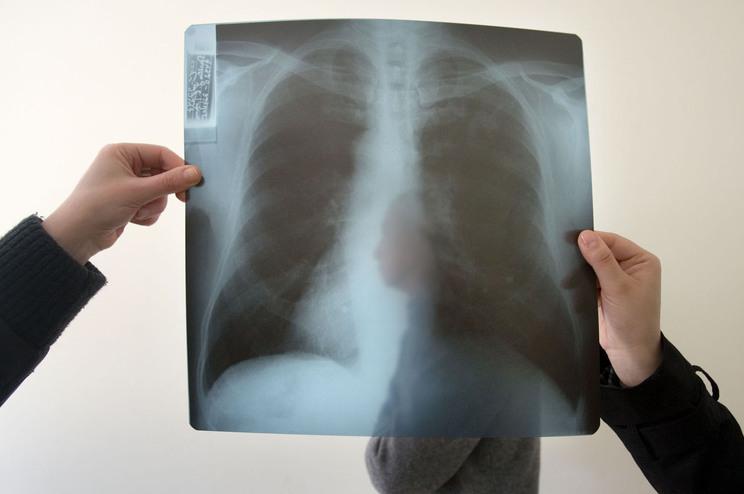 Desvio de meios para covid-19 ameaça combate à tuberculose, alerta OMS