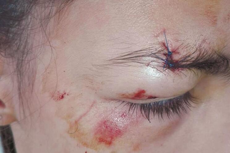 Menina teve de ser suturada no Hospital de Braga