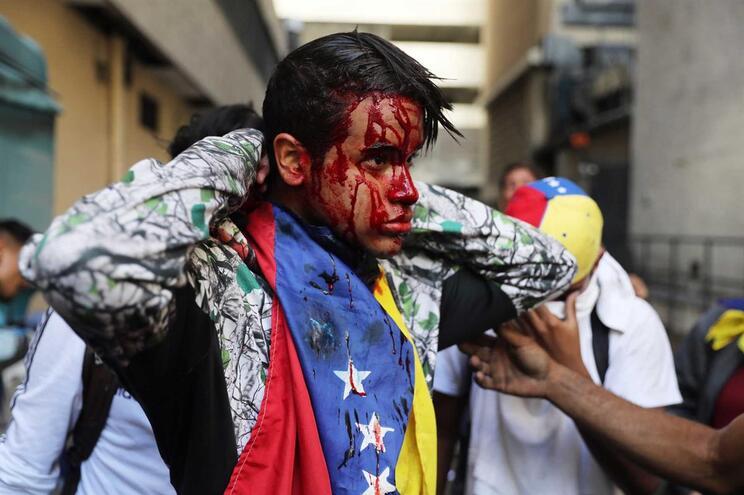 Semana de protestos na Venezuela causou 35 mortos