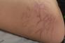 Criança ferida por caravela-portuguesa em praia de Vila do Conde