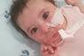 Matilde vai receber novo medicamento a 27 de agosto