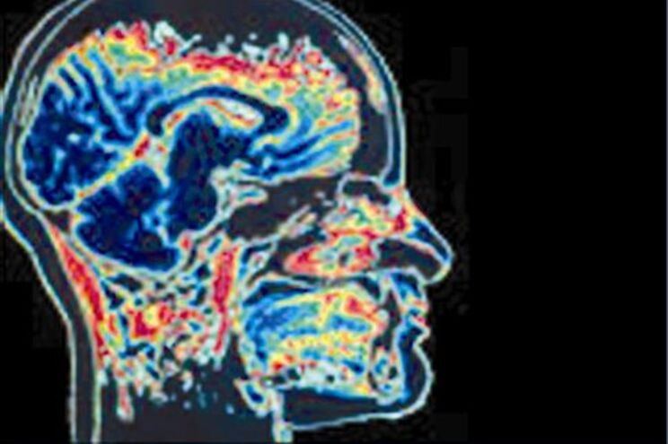 Volume do cérebro do homem moderno diminuiu 10%