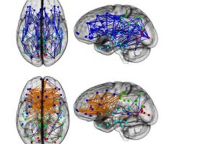 Cérebros de homens e mulheres estão ligados de formas diferentes