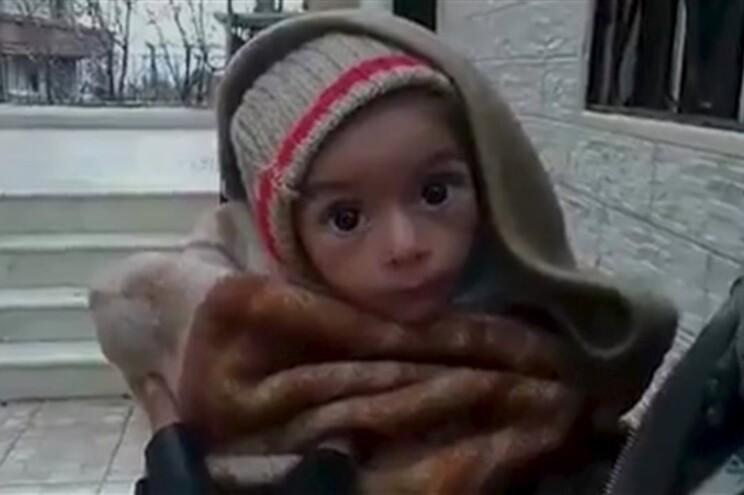Criança subnutrida em Madaya