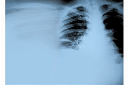 Vacina e quimio travam cancro do pulmão