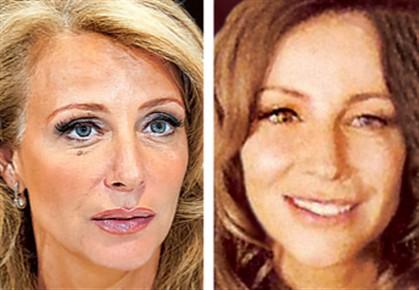 Alexandra Lencastre antes e depois do tratamento estético