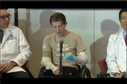 Soldado recupera os braços através de transplante
