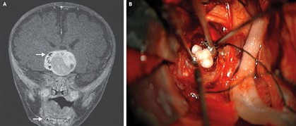 À esquerda, uma imagem do cérebro do menino. À direita, uma imagem dos dentes retirados durante a operação.