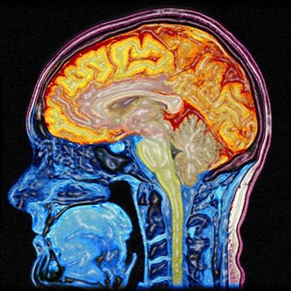 Criado chip informático inspirado no cérebro humano