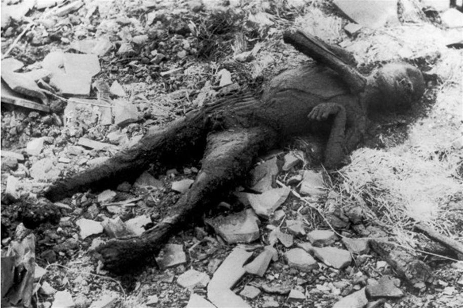 Fotos das vitimas da bomba atomica 10
